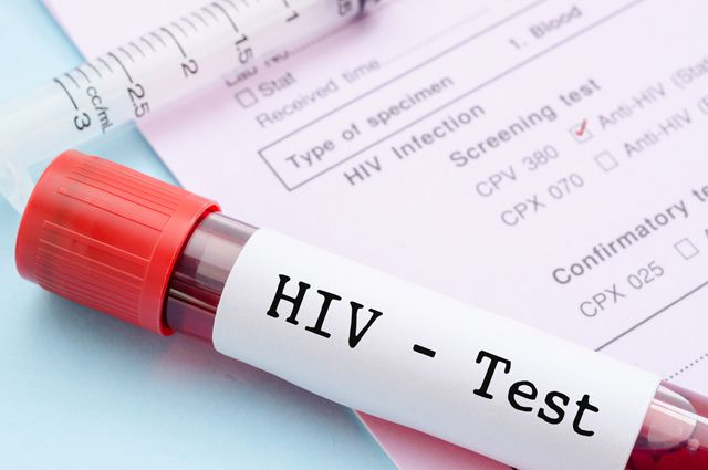ВИЧ в Хабаровском крае «выбирает» благополучную молодежь