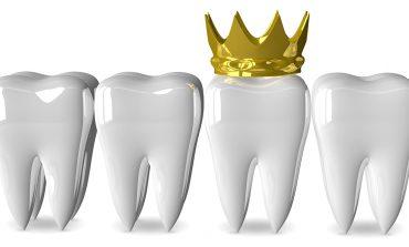 Как короновать зуб