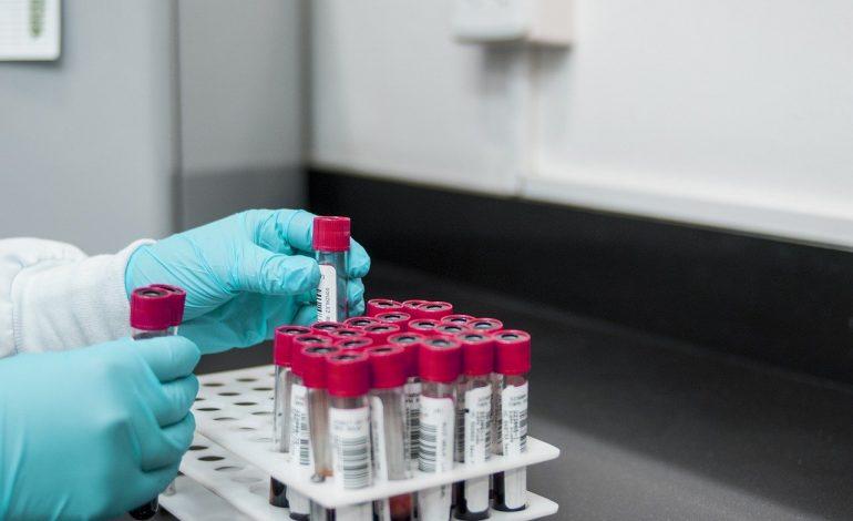 Президент России Владимир Путин заслушал сообщение правительства о мерах по предотвращению проникновения коронавируса 2019-nCoV в страну