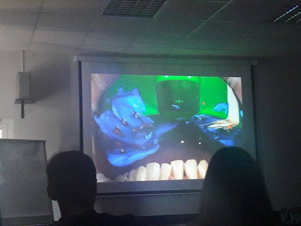 Как сделать красивые дёсны, и почему стоматологу лучше учиться на чужих ошибках